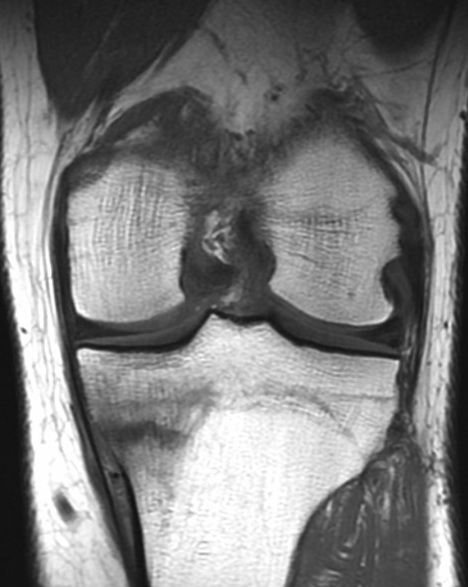 Tibia Stress Fracture in Runner
